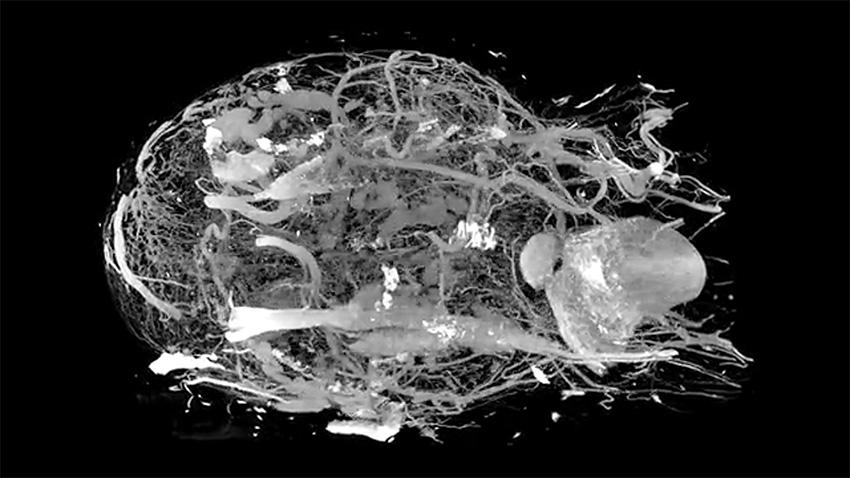 compact MRI